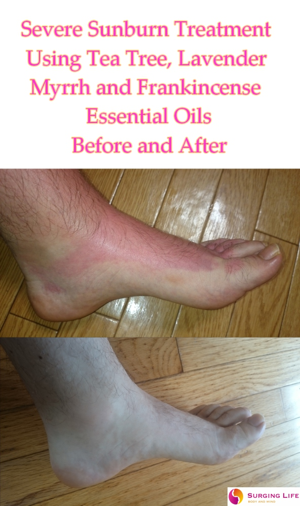 Essential Oils For Sunburn Treatment - Severe - Left Foot - Side