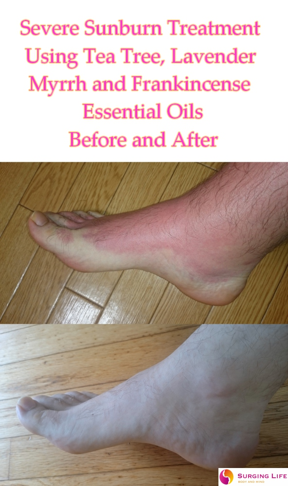 Essential Oils For Sunburn Treatment - Severe - Right Foot - Side
