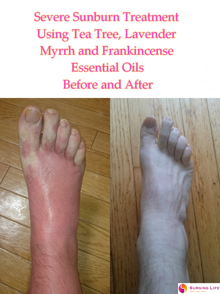 Essential Oils For Sunburn Treatment - Severe - Right Foot - Top